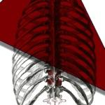 Компресия на гръбначния мозък при рак