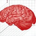 Изкуствен интелект може да преобрази лечението на мозъчните тумори